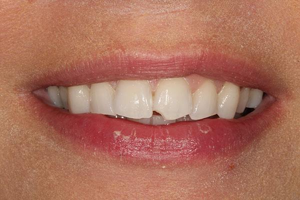 carlie teeth straightening in swanley