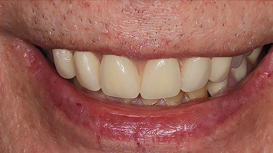 john smile makeover london dentist