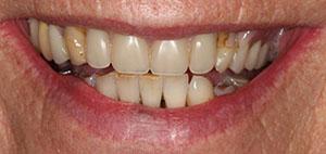 kathleen-before-full-mouth-makeover-2
