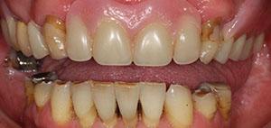 kathleen-before-full-mouth-makeover-3