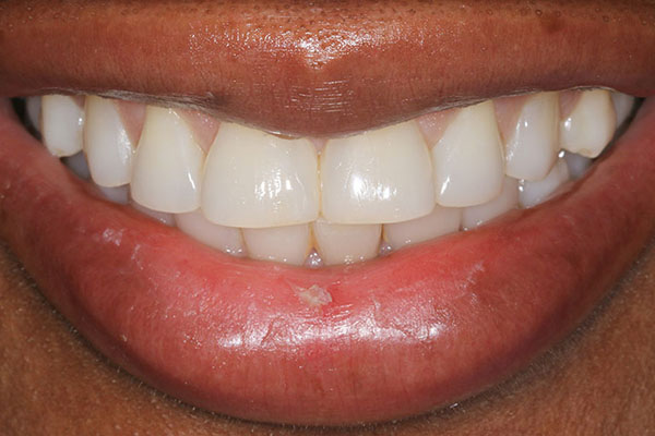 lola-after-teeth-whitening-1
