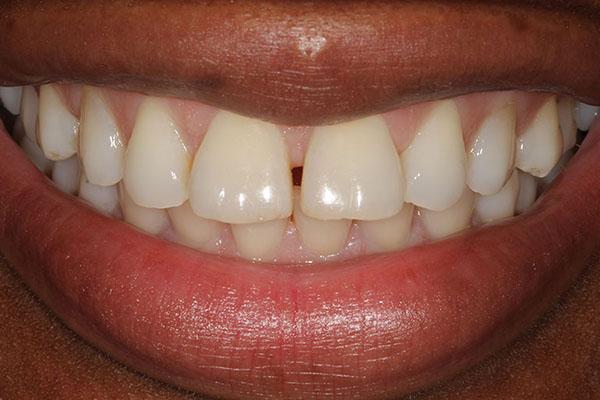 lola-before-teeth-whitening-1
