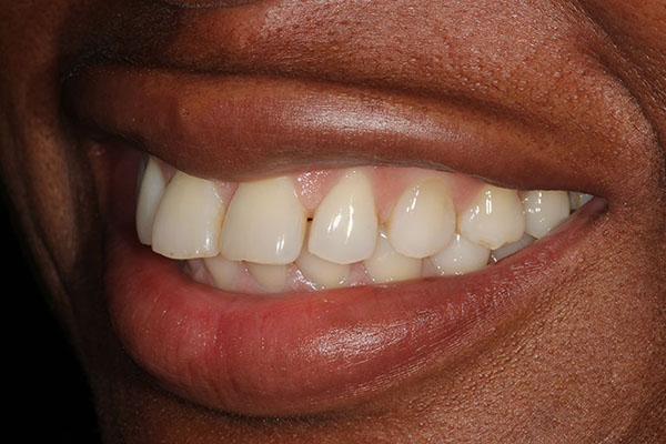 lola-before-teeth-whitening-2