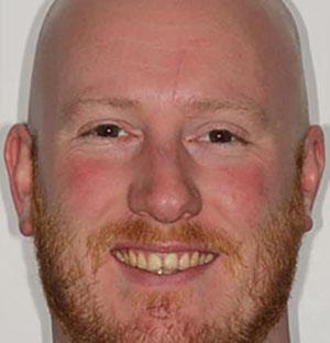 steve-before-dental-bonding dentist london