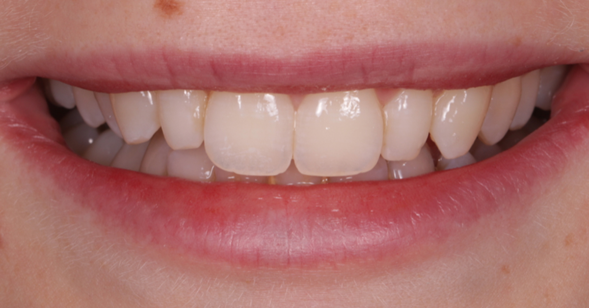 dental beauty cosmetic bonding treatment before 2