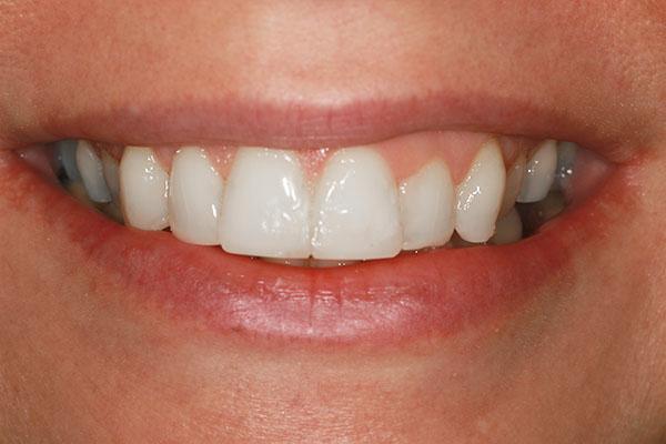 teeth-straightening-carlies-result