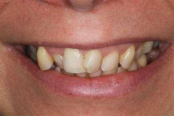 teeth-straightening-dental-beauty-carlie